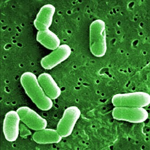 How superbugs and overuse of antibiotics will impact the health of you and your family. (The Health-Minded.com) #health